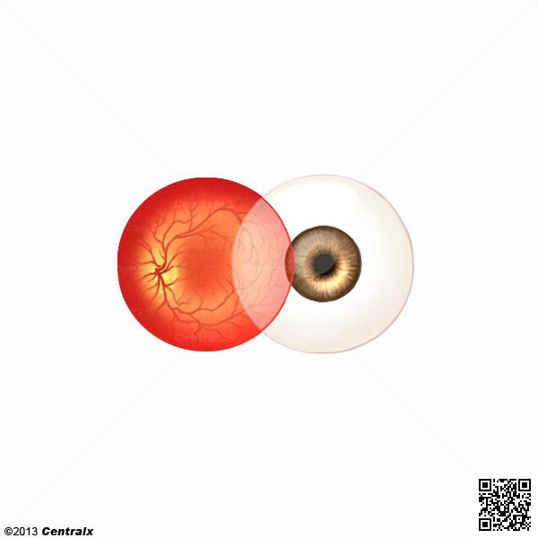 Retinal Artery