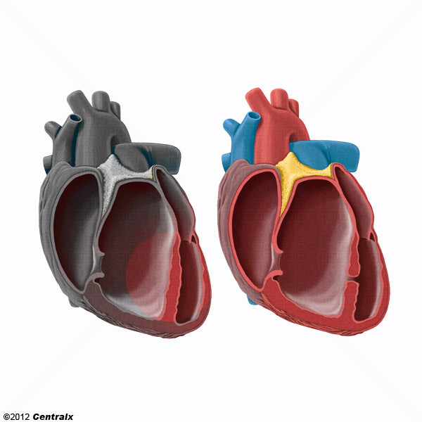 Heart Septum