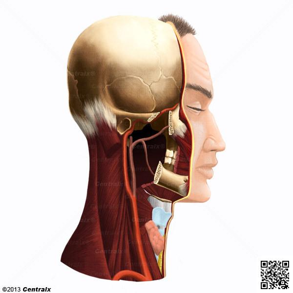 Carotid Artery, Internal