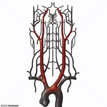 Carotid Arteries
