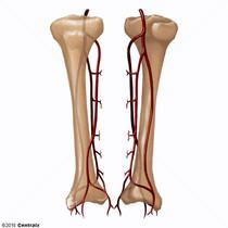 Tibial Arteries