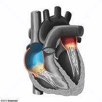 Heart Atria