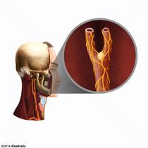 Para-Aortic Bodies