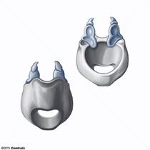 Arytenoid Cartilage