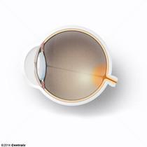 Optic Disk